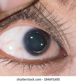 Close up of eye examination, anterior lens suluxation.