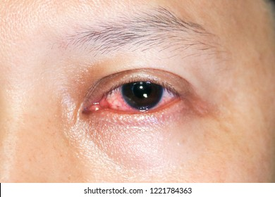 Close up  eye inflection, conjunctivitis