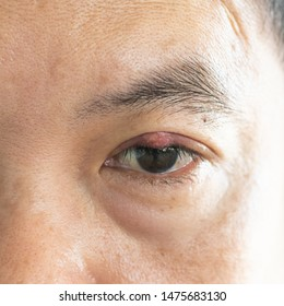 Close up of eyelid abscess (stye, hordeolum)