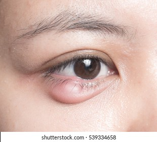 Close up of eyelid abscess (stye, hordeolum)