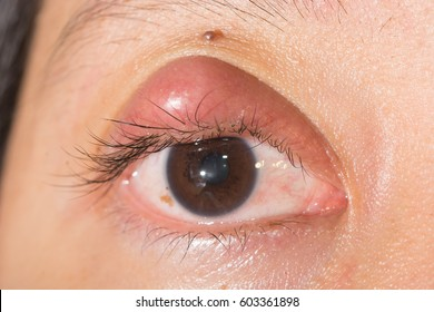 Close up of eyelids infection, hordeolum, stye, abscess during eye examination.