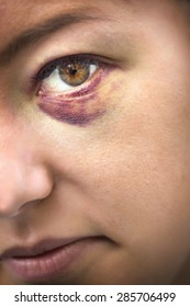 Close Up of eyes of a woman domestic violence victim