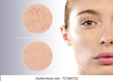 Close up of the face of a beautiful woman with perfect skin and two macro zoom of the skin before using the cream (dry and dry) and after using the cream (soft and moisturized). Concept of:skincare
