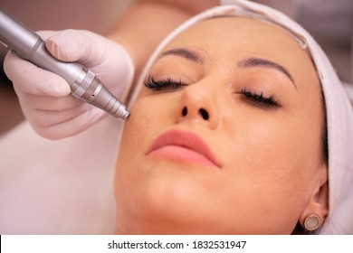 Close up of facial treatment with acupuncture pen, madero facial acupuncture concept