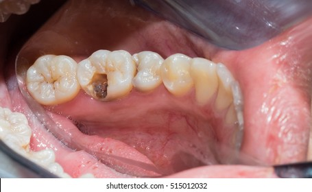 Close up of female patient mouth with decayed teeth after removing decay tissue. Dental health care concept. Hygiene teeth. Dentistry