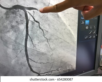 Close up finger point disease at coronary artery on monitor