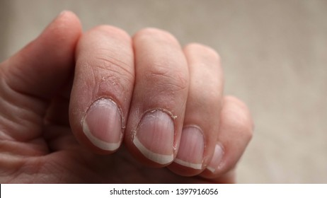 Close up of fingers with dry, cracked skin on cuticles, bits flaking off