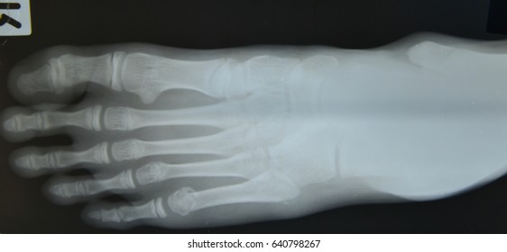Close up foot bone  x-ray medical science background
