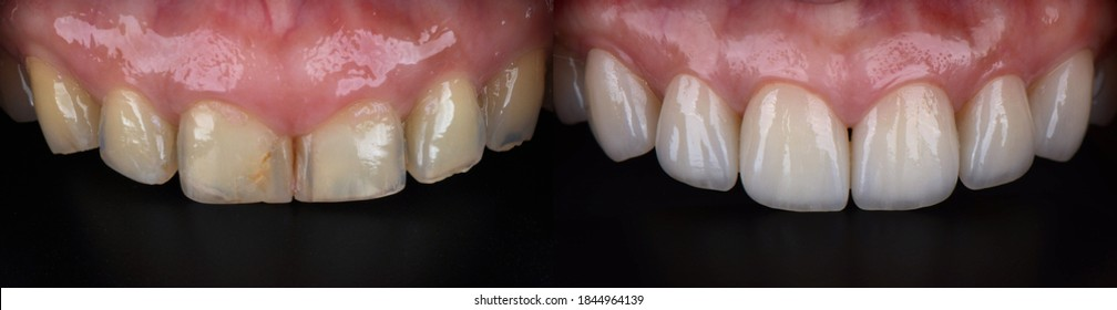 Close up of front teeth veneers before and after. After veneers place in result in beautiful perfect and white smile.