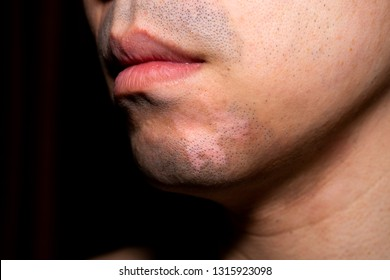Close up front view of Asian man with Vitiligo. Abnormal skin Melanocyte Pigment.
