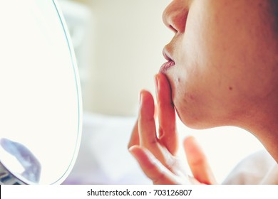 Close up Girl applying aloe gel to problematic skin with acne scars, Health care products at medical industry. girl gently touches her forehead with pimples on her skin.