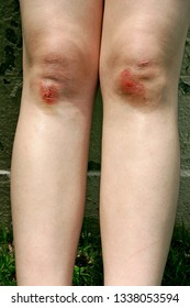 Close up of a girl's bloody skinned knees in summer
