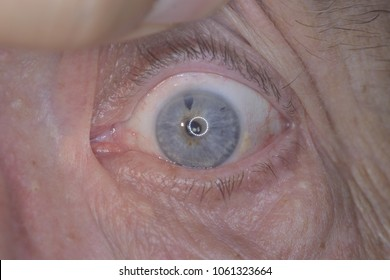 close up of the glaucomatous eye during eye examination.