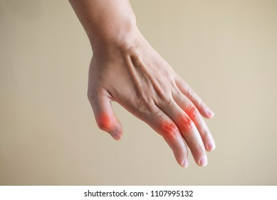 close up hand rheumatoid arthritis pateint.medical concept.