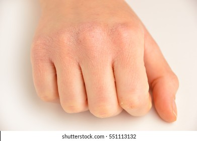 Close up of hand with very dry skin and deep cracks on knuckles over white background