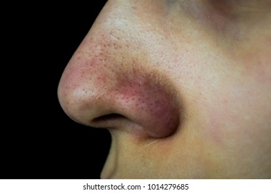 close up has skin problem, large pores, whitehead and blackhead pimple