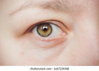 close up hazel eye, no make up, no edit