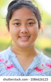 close up head of asian teen age with braces dental teeth