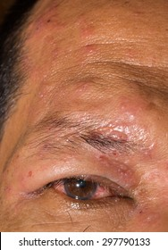 close up of the herpes zoster ophthalmicus during eye examination.