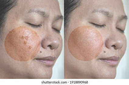 Close up Image before and after dark spot melasma pigmentation facial treatment on asian woman face. Skincare and health problem concept. Real people treatment.