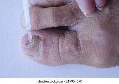 Close up image of broken toenail caused by fungus infection receiving tincture medication by brush applicator.