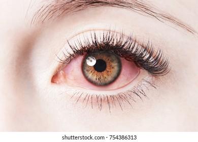 Close up image of human irritated red bloodshot eye