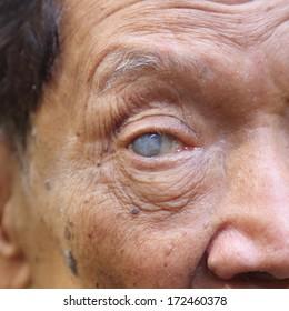 close up image of old man blind eye