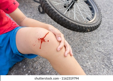 Close up image on a wound at a knee of a boy after falling down from bicycle.