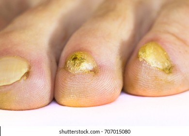 Close Up Image Of Right Foot Toe Nail Suffering From Fungus Infection Isolated On White Background