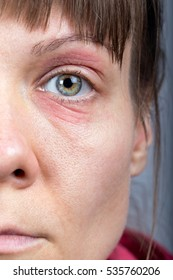 Close up image of a woman face with red, swollen eyes with wrinkles around
