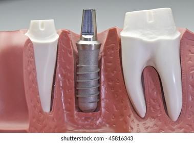 インプラントモデルの接写。これは、インプラントの入れ方を示し、かさ奥歯に冠を付ける様子を示しています。