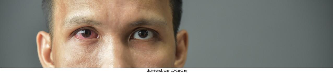 Close Up of irritated red bloodshot male eye.