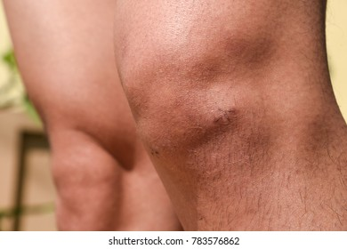Close up of keyhole surgial wounds on the knee