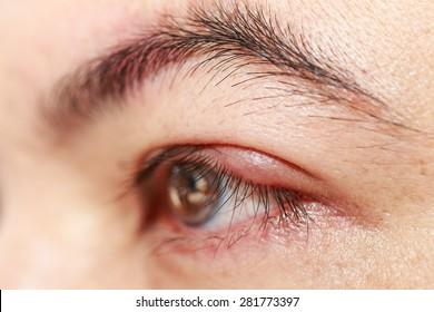"Close up left upper eye lid abscess ""stye or hordeolum"""
