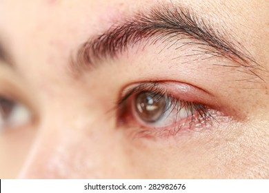 "Close up left upper eye lid abscess ""stye or hordeolum"""