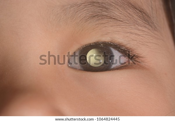 close up of the leukicoria during eye examination.