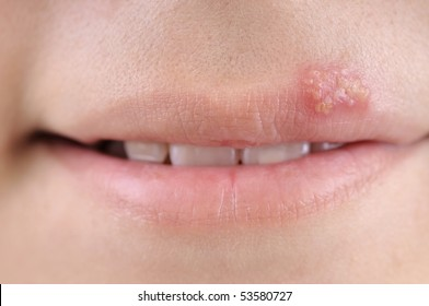 Close up of lips affected by herpes.