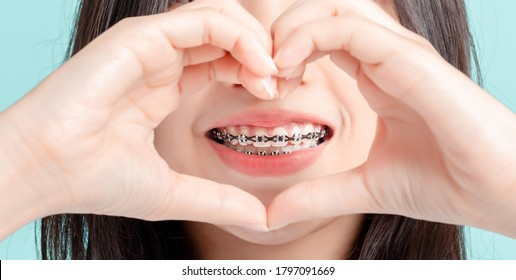 Close up Lover Dental braces of young asian woman wearing braces beauty smile with white teeth increase confidence for healthy on blue background isolated studio shot, Happiness teenager smiling.
