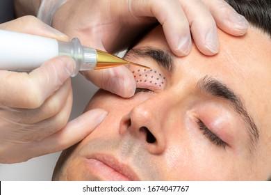 Close up macro detail of middle aged man having skin tightening on eyelids with laser plasma pen. - Shutterstock ID 1674047767