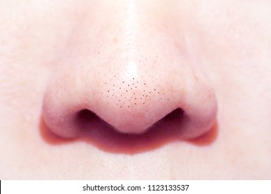 close up macro of many acne small blackhead pimples on the nose