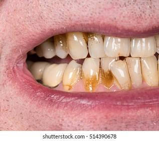 impotencia de la placa dental