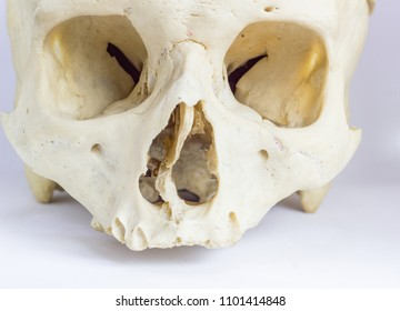 close up macro view of human skull bone showing the anatomy of nasal foramen, nasal septum and orbital cavity