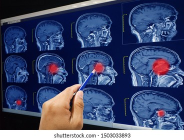 Close up Magnetic resonance imaging (MRI) of the brain tumor, brain abscess on the hand doctor holding a blue pen point on red mark sagittal view.Healthcare and medical concept.