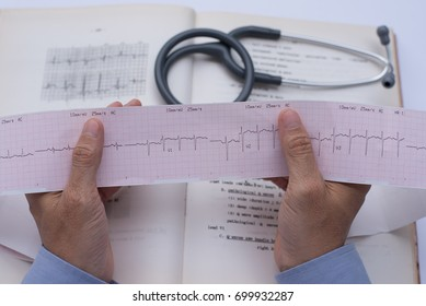 Close up of male cardiologist doctor or medical student hands holding ekg paper print with cardiology textbook background