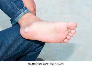 Plantar Wart Images, Stock Photos & Vectors | Shutterstock