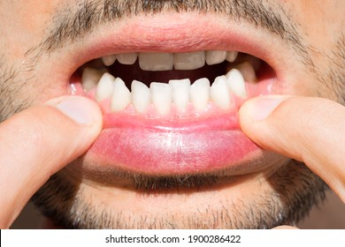 Close up of man mouth with crooked teeth. Reason to install teeth braces. Bad teeth
