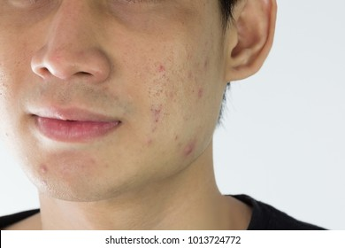 Close up of man with problematic skin and scars from acne