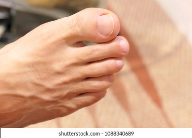 Close up of man right foot with blood vessel. Toe, Forefinger ,  Middle , ring and little finger.
