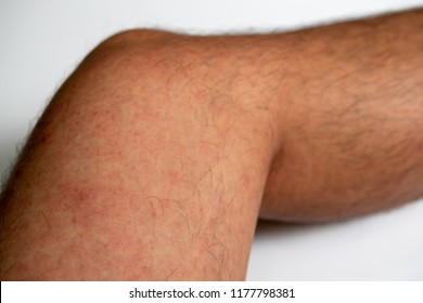 Close up of Measles rash on patient's leg skin, Symptoms of German Measles or Rubella infection