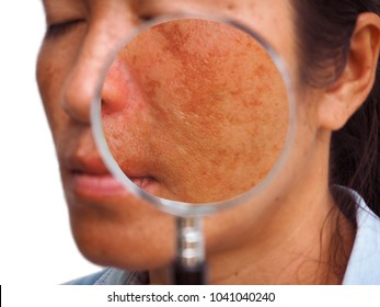Close up melasma on woman face, skin problem